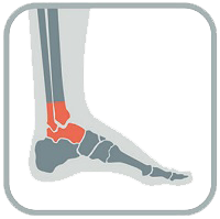 ankle injury pain